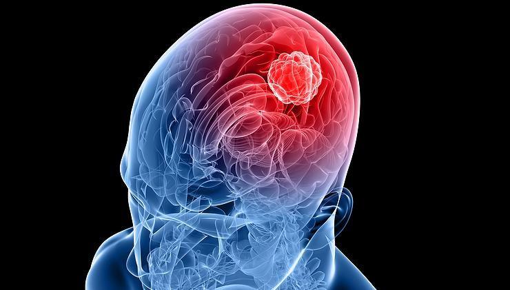 2-nadory-mozku-740x421